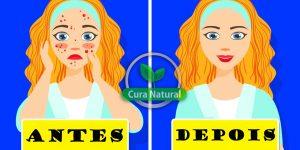 remédios caseiros para eliminar acne cística