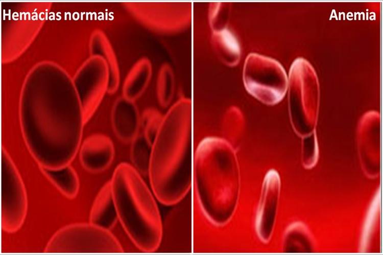Como Combater a Anemia em Poucos Dias!