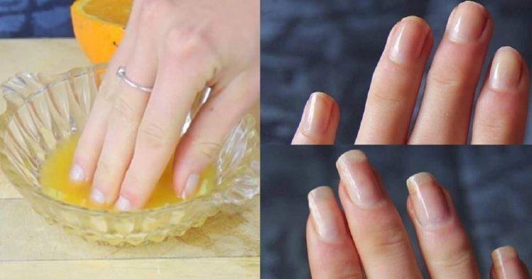 dicas para fazer as unhas crescer rápido