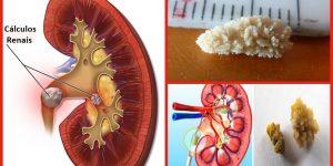 eliminar cálculos renais