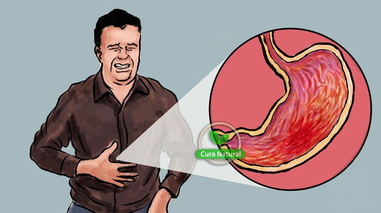 causas, sintomas e tratamentos de gastrite