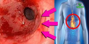 hábitos para evitar inchaço, indigestão e refluxo ácido!