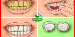 remédio caseiro para clarear os dentes