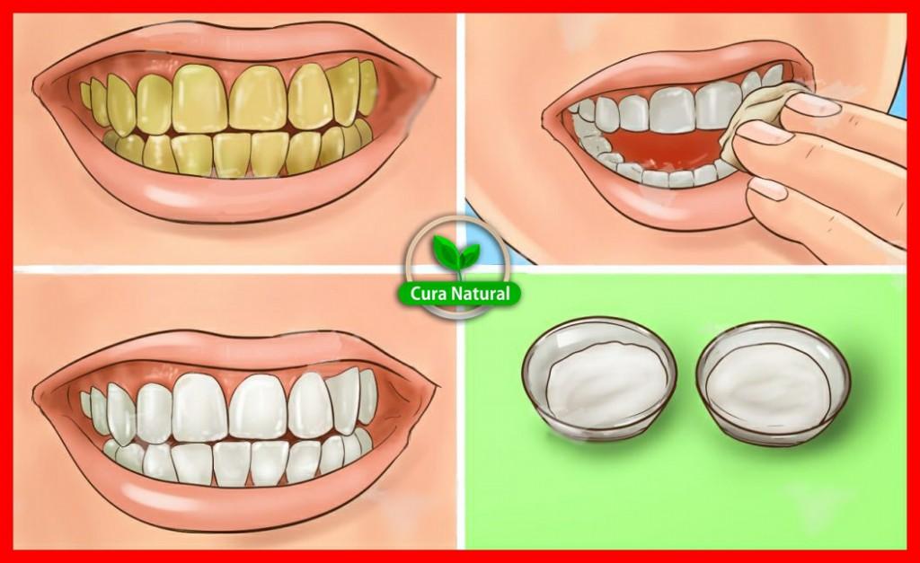 Remédio Caseiro Para Clarear os Dentes em 20 Minutos
