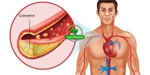 receita caseira para baixar o colesterol
