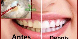 clarear dentes amarelos