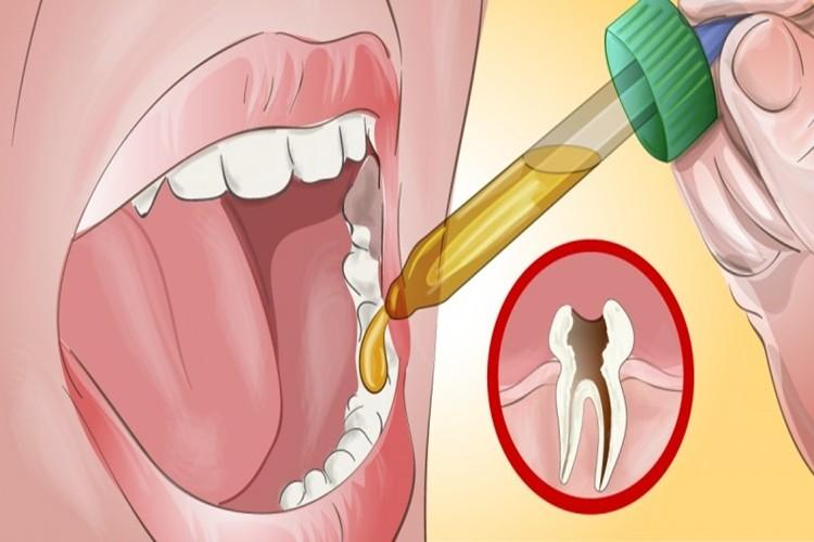 Como aliviar a dor de dente em poucos minutos! | Cura Natural