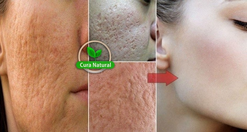 Receitas caseiras para eliminar as marcas de acne: como fazer e dicas