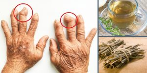artrite remedio caseiro