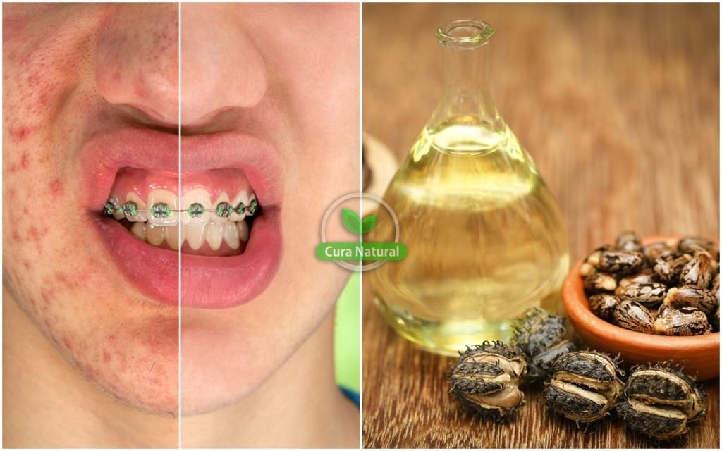 dicas para acabar com a acne usando oleo de ricino