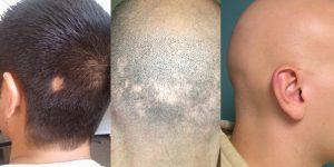 primeiros sinais de alopecia e como prevenir