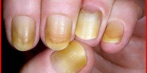 amarelado das unhas