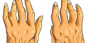 quais os tratamentos naturais para combater a artrite?