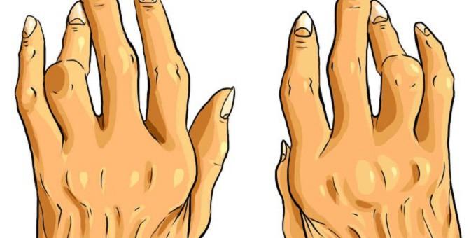Os 10 Tratamentos Naturais Para Combater a Artrite