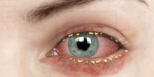 blefarite causas