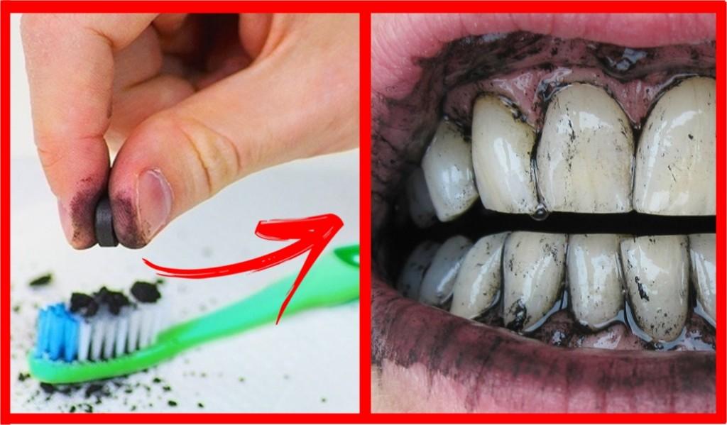 Como Branquear Os Dentes Com Carvao Ativado