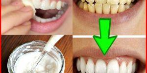 bicarbonato de sodio para clarear os dentes
