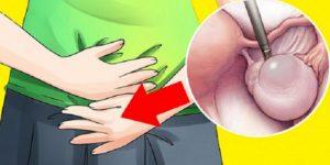 sintomas do câncer de ovário