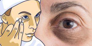 como reduzir os círculos escuros nos olhos?