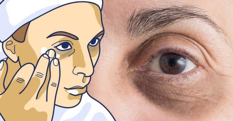 Como Reduzir as Bolsas e Círculos Escuros nos Olhos