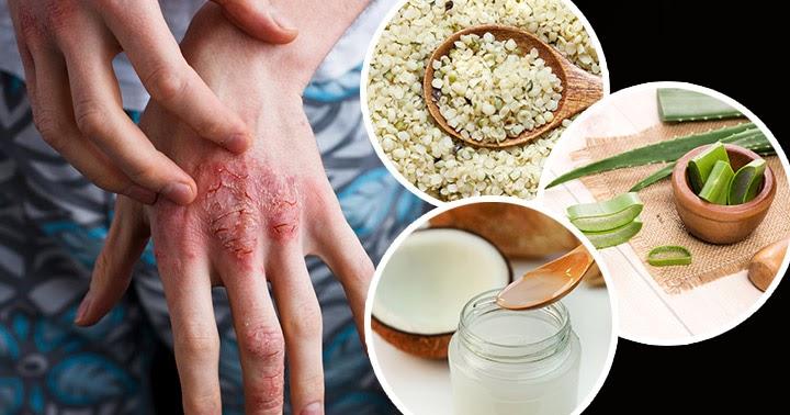 Os 10 Remédios Naturais Para se Livrar de Cicatrizes Eczema