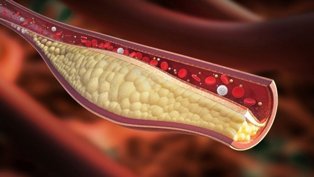 principais fatores de problemas de colesterol
