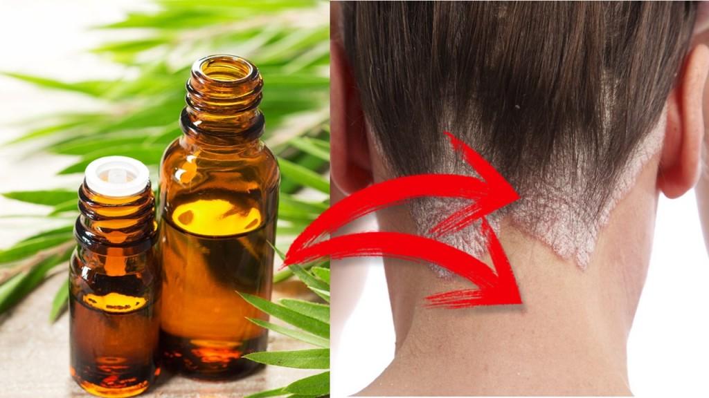 óleo da árvore do chá para tratar eczema