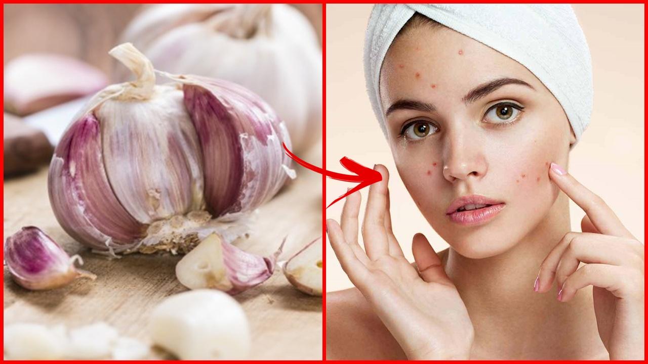 como tratar a acne com apenas 1 ingrediente