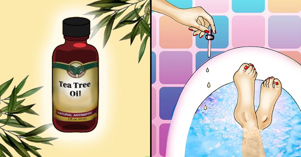 dicas de como curar o pé do atleta usando óleo da árvore do chá