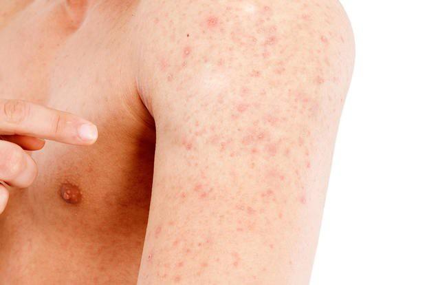 dermatite atopica