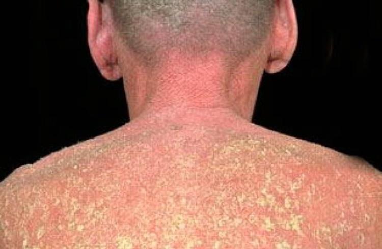 causas da dermatite esfoliativa