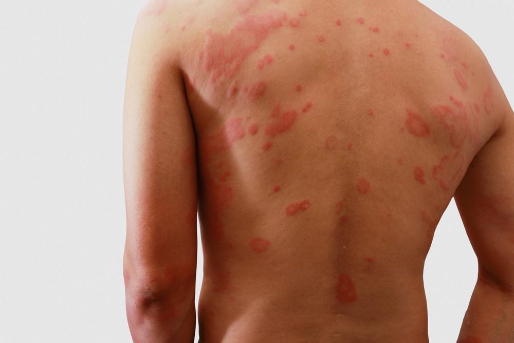 Dermatite Numular tratamentos