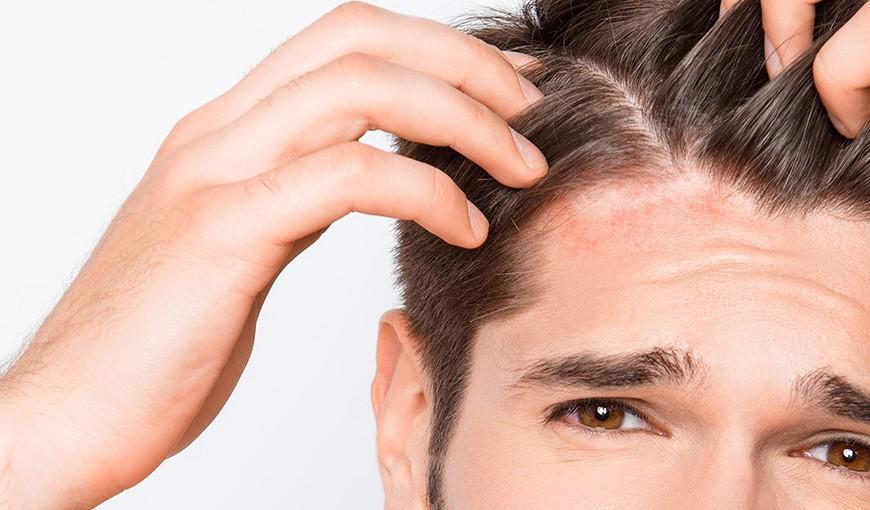 causas da dermatite seborreica