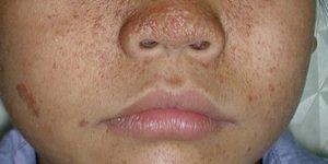 esclerose tuberosa