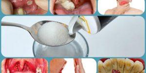 quais os benefícios de gargarejar com água salgada?