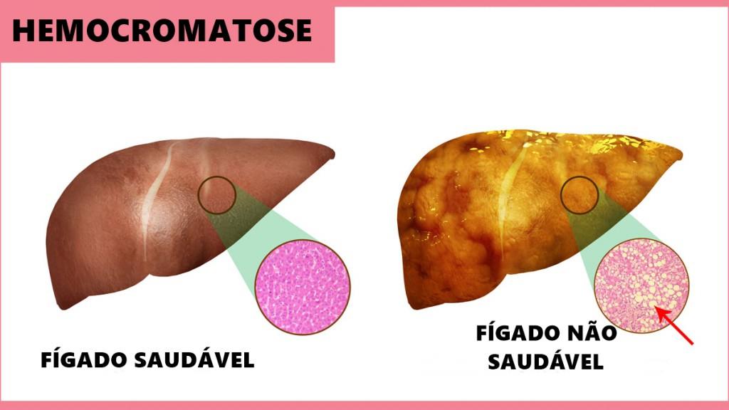 hemocromatose o que e