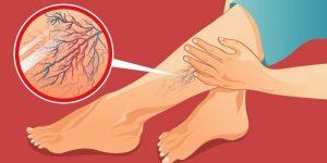 sinais de que você tem má circulação de sangue