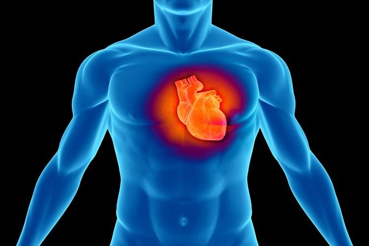 miocardiopatia dilatada