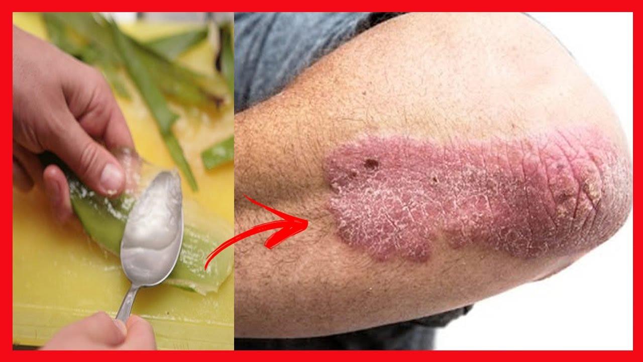 receitas para se livrar de cicatrizes eczema
