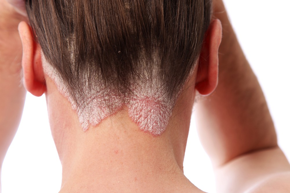 aloe vera combate a dermatite
