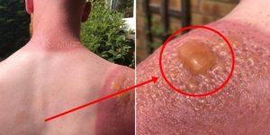 remedios caseiros para tratar queimaduras solares
