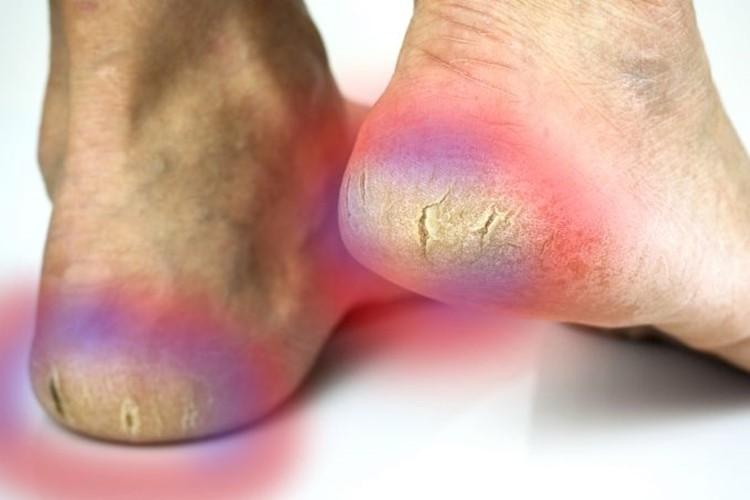 remédios caseiros para eliminar os pés rachados