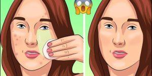 remédios caseiro para eliminar as espinhas naturalmente