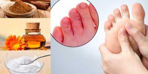 remedios caseiros para acabar com pé de atleta