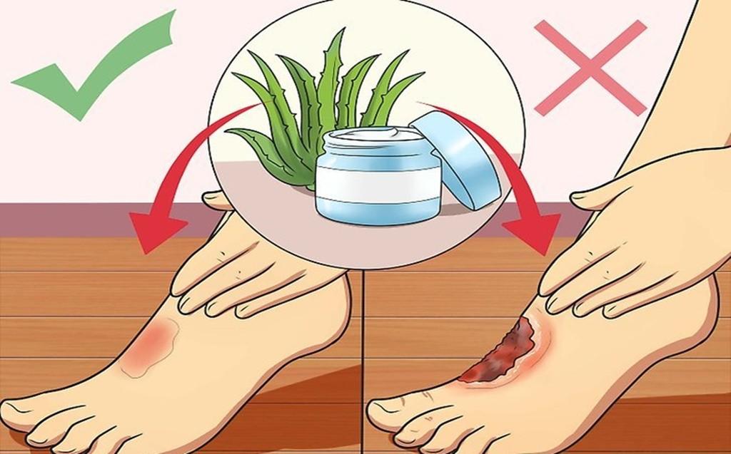 remedios para tratar queimaduras em casa