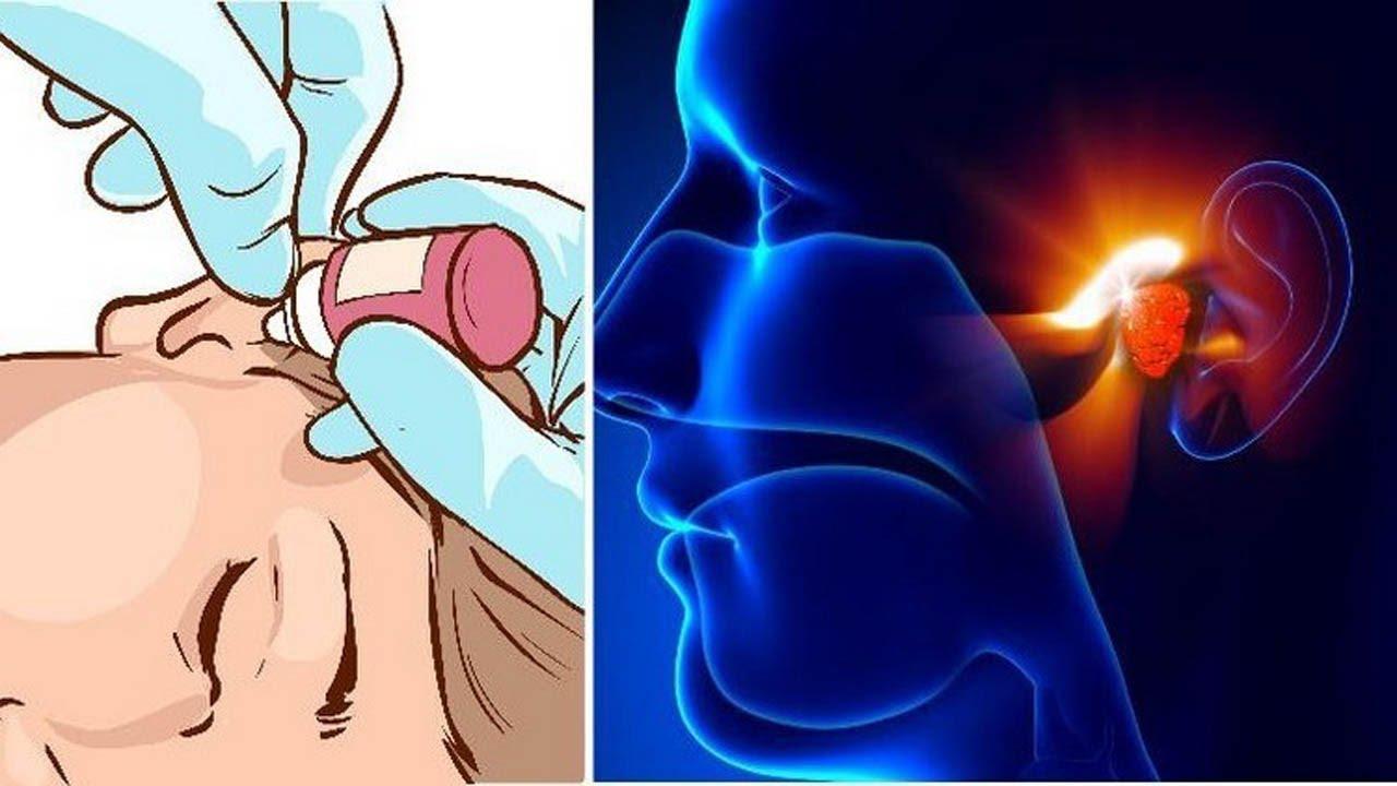Os 10 Remédios Caseiros Para Combater Infecções no Ouvido
