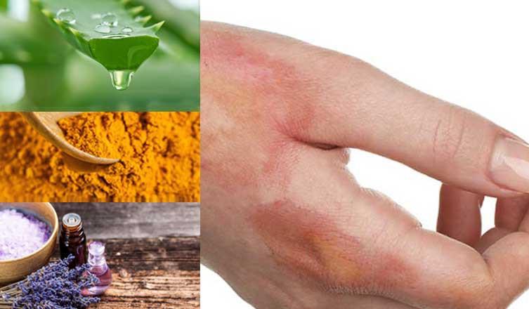 remedios caseiros para tratar queimaduras