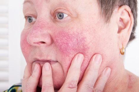 Rubor Facial causas