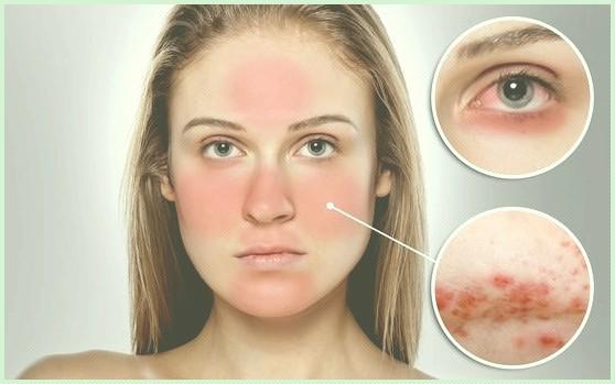 rubor facial o que e, causas, sintomas e tratamentos