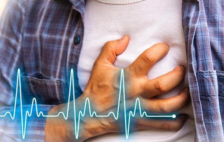 Taquicardia causas